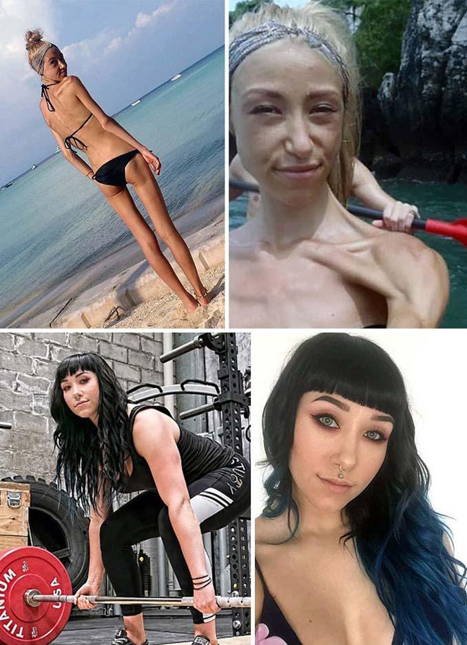 Πριν και Μετά - Εκπληκτικές φωτογραφίες ανθρώπων που νίκησαν την ανορεξία (10)