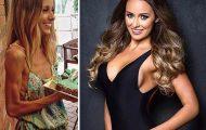 Πριν και Μετά - Εκπληκτικές φωτογραφίες ανθρώπων που νίκησαν την ανορεξία (13)