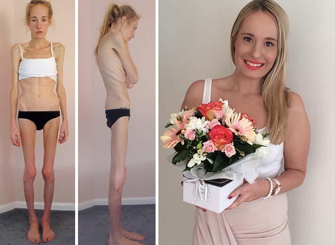 Πριν και Μετά - Εκπληκτικές φωτογραφίες ανθρώπων που νίκησαν την ανορεξία (14)