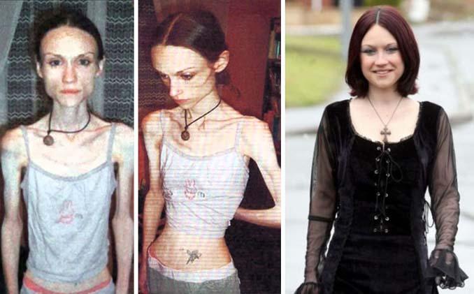 Πριν και Μετά - Εκπληκτικές φωτογραφίες ανθρώπων που νίκησαν την ανορεξία (17)