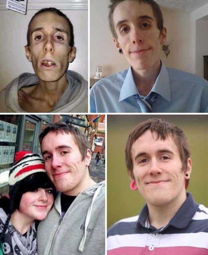 Πριν και Μετά - Εκπληκτικές φωτογραφίες ανθρώπων που νίκησαν την ανορεξία (19)