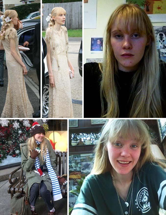 Πριν και Μετά - Εκπληκτικές φωτογραφίες ανθρώπων που νίκησαν την ανορεξία (20)