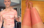 Φορές που η ηλιοθεραπεία είχε κωμικοτραγικά αποτελέσματα (1)