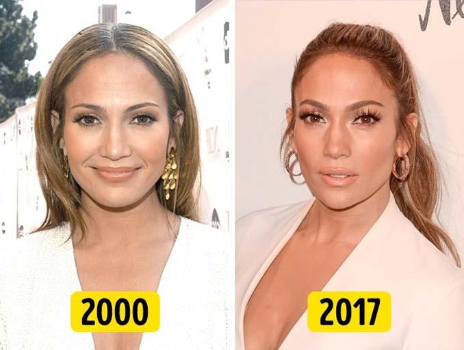 Πόσο άλλαξαν διάσημες γυναίκες του Χόλιγουντ μέσα σε μια 20ετία (12)