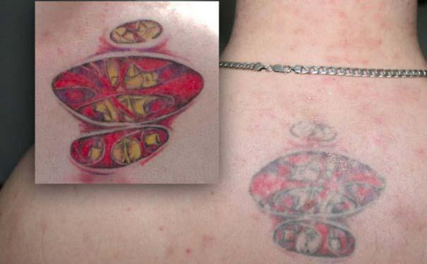 Φωτογραφίες δείχνουν πώς γίνονται τα τατουάζ μετά από καιρό (17)
