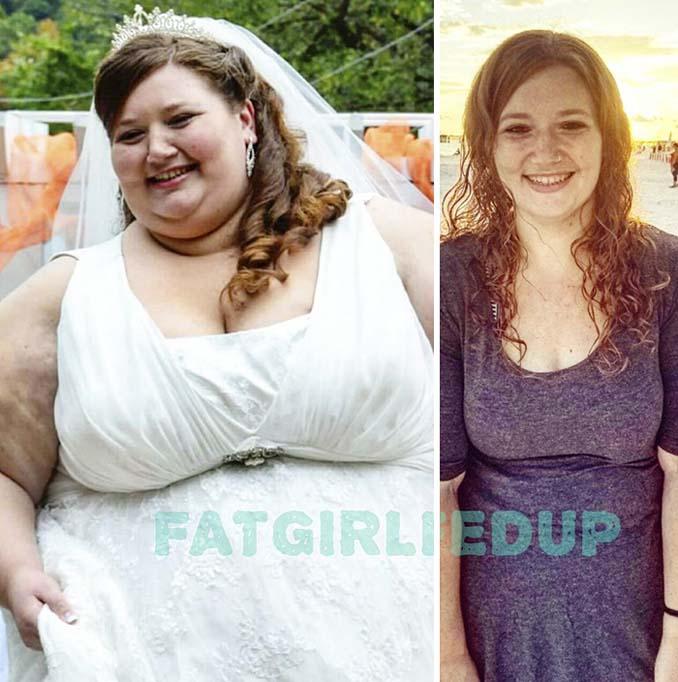 Έχασε 135 κιλά σε 18 μήνες - Οι φωτογραφίες «πριν και μετά» μας άφησαν άφωνους (7)