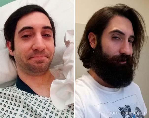 Πριν και μετά το μούσι - Απίστευτες μεταμορφώσεις (6)