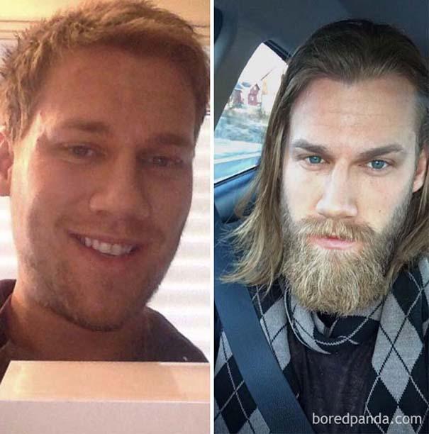 Πριν και μετά το μούσι - Απίστευτες μεταμορφώσεις (18)