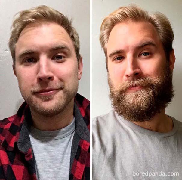 Πριν και μετά το μούσι - Απίστευτες μεταμορφώσεις (23)
