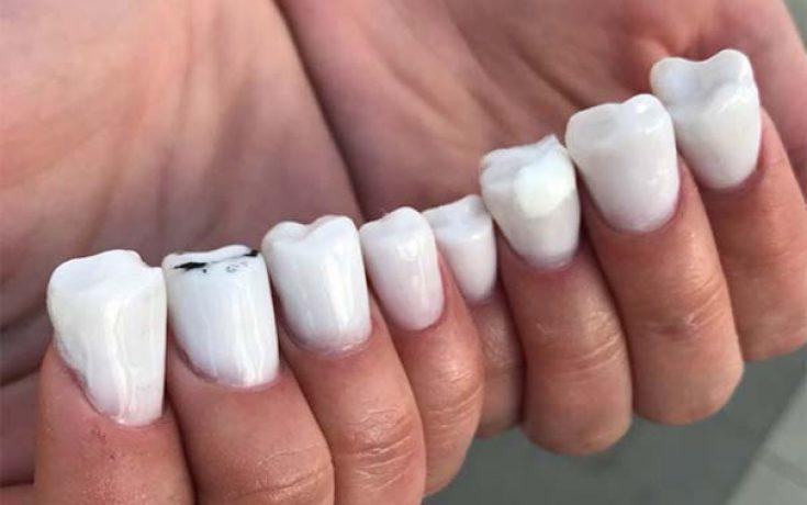 Νύχια σε σχήμα δοντιών και άλλα κωμικοτραγικά μανικιούρ (1)